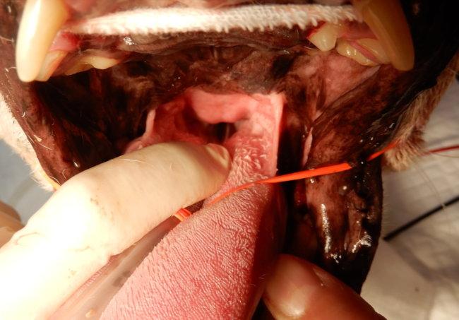 軟口蓋過長 手術後